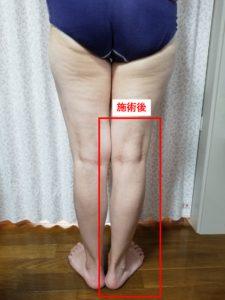 施術後の脚