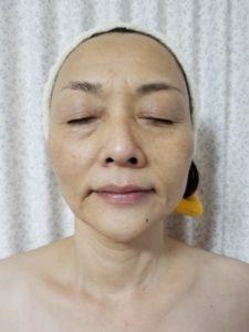 顎のライン(施術後)